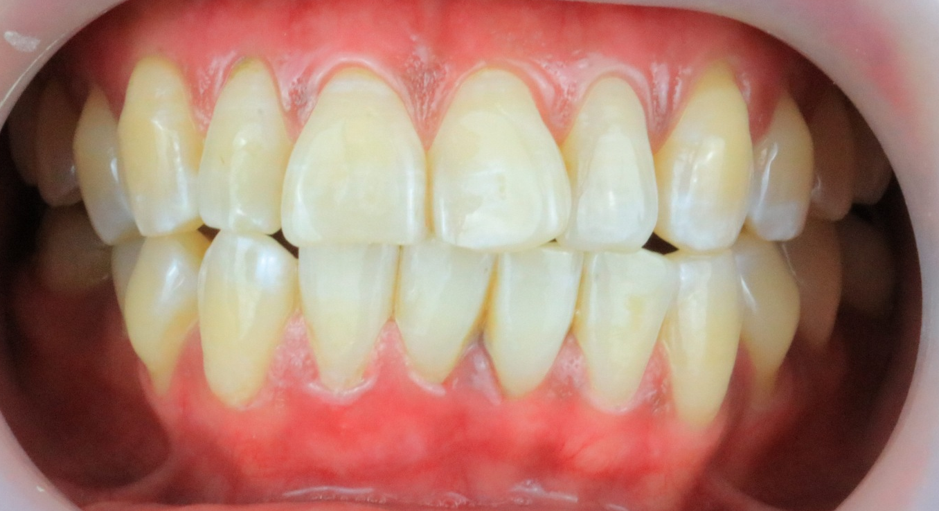 After-Gum Bleaching