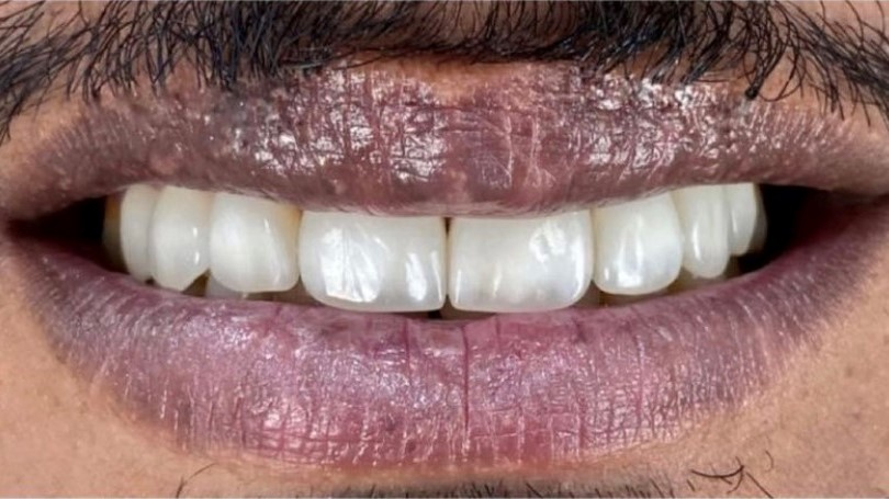 After-Hollywood Smile
