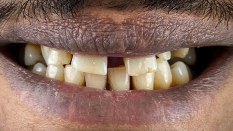 Before-Hollywood Smile